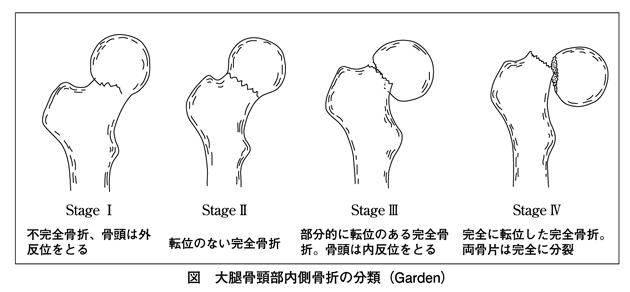 エバンス 分類